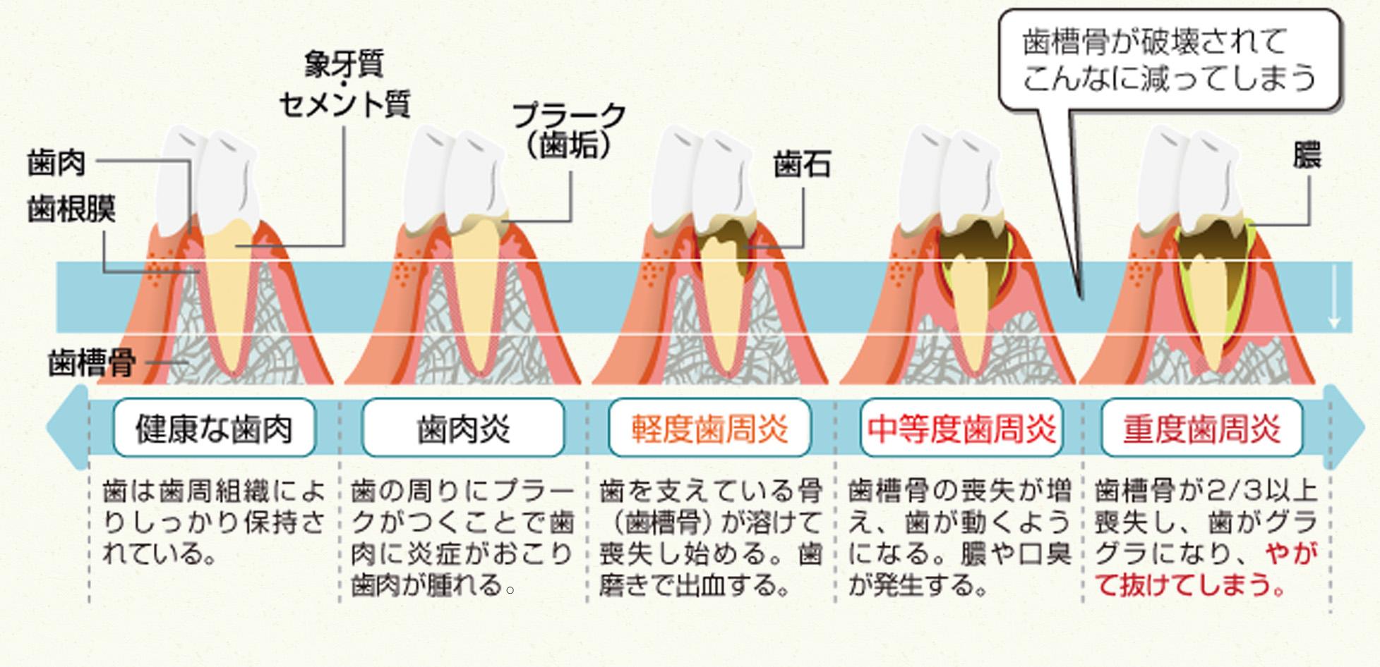 歯周病の進行の様子
